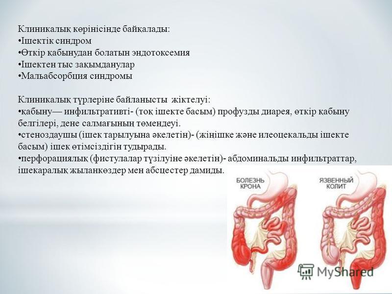 Клиникалық көрінісінде байқаллоды: Ішектік синдром Өткір қабынудан болатын эндотоксемия Ішектен тыс зақымданулар Мальабсорбция синдромы Клиникалық түрлеріне байланысты жіктелуі: қабыну инфильтративті- (тоқ ішекте босым) профузды диарея, өткір қабыну