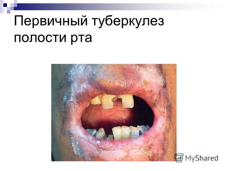 Первичный туберкулез полости рта