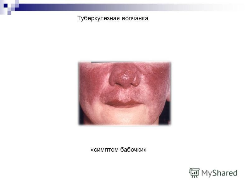 Туберкулезная волчанка «симптом бабочки»