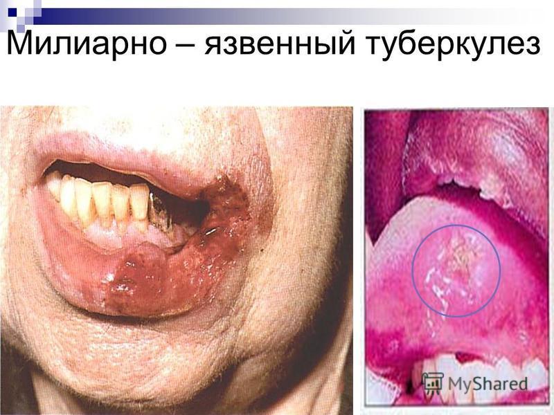 Милиарно – язвенный туберкулез