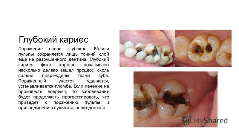 Глубокий кариес Поражение очень глубокое. Вблизи пульпы сохраняется лишь тонкий слой еще не разрушенного дентина. Глубокий кариес фото хорошо показывают насколько далеко зашел процесс, сколь сильно повреждены ткани зуба. Пораженный участок удаляется,