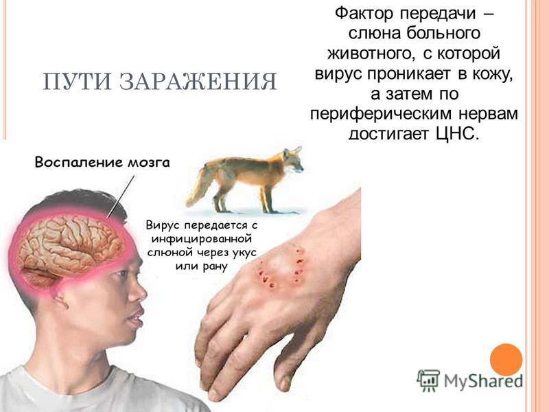 ПУТИ ЗАРАЖЕНИЯ Фактор передачи – слюна больного животного, с которой вирус проникает в кожу, а затем по периферическим нервам достигает ЦНС.