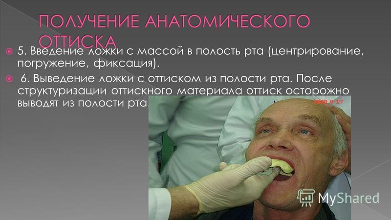 5. Введение ложки с массой в полость рта (центрирование, погружение, фиксация). 6. Выведение ложки с оттиском из полости рта. После структуризации оттискного материала оттиск осторожно выводят из полости рта.