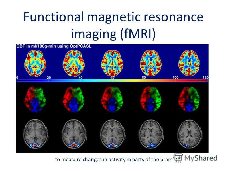 Functional magnetic resonance imaging (fMRI) to measure changes in activity in parts of the brain