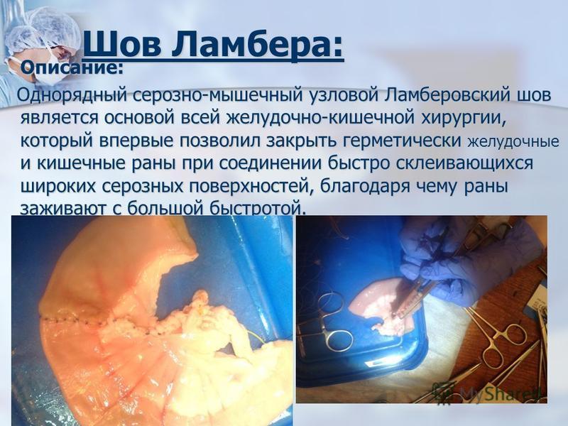 Шов Ламбера: Описание: Описание: Однорядный серозно-мышечный узловой Ламберовский шов является основой всей желудочно-кишечной хирургии, который впервые позволил закрыть герметически желудочные и кишечные раны при соединении быстро склеивающихся широ