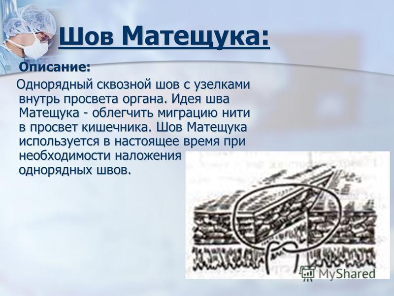 Шов Матещука: Описание: Описание: Однорядный сквозной шов с узелками внутрь просвета органа. Идея шва Матещука - облегчить миграцию нити в просвет кишечника. Шов Матещука используется в настоящее время при необходимости наложения однорядных швов. Одн