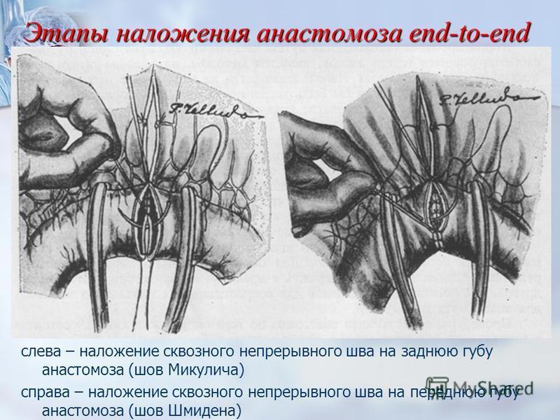 Этапы наложения анастомоза end-to-end слева – наложение сквозного непрерывного шва на заднюю губу анастомоза (шов Микулича) справа – наложение сквозного непрерывного шва на переднюю губу анастомоза (шов Шмидена)