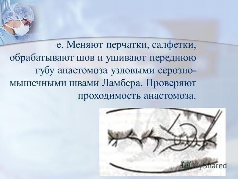 е. Меняют перчатки, салфетки, обрабатывают шов и ушивают переднюю губу анастомоза узловыми серозно- мышечными швами Ламбера. Проверяют проходимость анастомоза. ж. Слепые культи во избежании инвагинации фиксируют несколькими узловыми швами к стенке ки