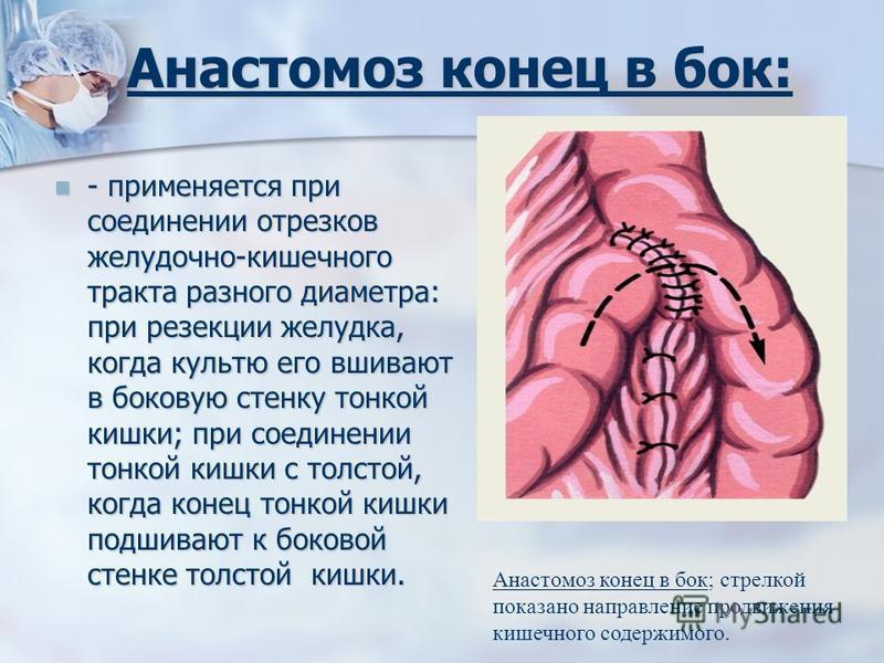 Анастомоз конец в бок: - применяется при соединении отрезков желудочно-кишечного тракта разного диаметра: при резекции желудка, когда культю его вшивают в боковую стенку тонкой кишки; при соединении тонкой кишки с толстой, когда конец тонкой кишки по