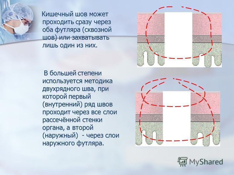 Кишечный шов может проходить сразу через оба футляра (сквозной шов) или захватывать лишь один из них. Кишечный шов может проходить сразу через оба футляра (сквозной шов) или захватывать лишь один из них. В большей степени используется методика двухря