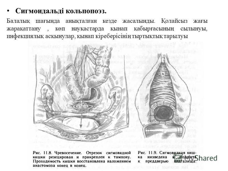 Сигмоидальді кольпопоэз. Балалық шағында анықталған кезде жасалынды. Қолайсыз жағы жарақаттану, көп науқастарда қынап қабырғасының сылынуы, инфекциялық асқынулар, қынап кіреберісінің тыртықтық тарылуы