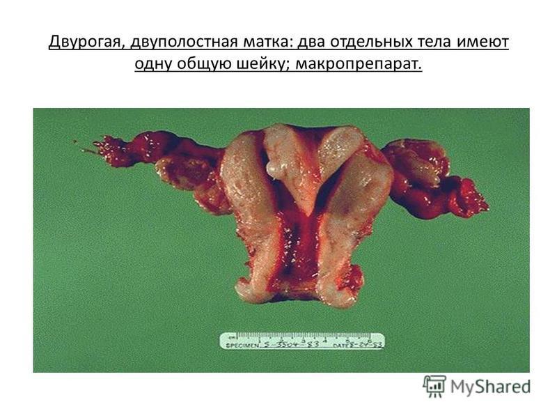 Двурогая, двуполостная матка: два отдельных тела имеют одну общую шейку; макропрепарат.