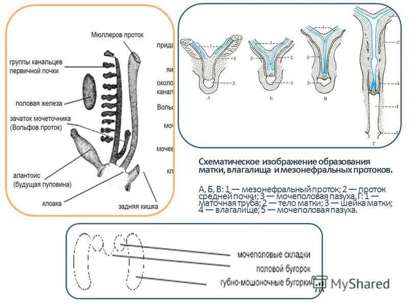 Схематическое изображение образования матки, влагалища и мезонефральных протоков. А, Б, В: 1 мезонефральный проток; 2 проток средней почки; 3 мочеполовая пазуха. Г: 1 маточная труба; 2 тело матки; 3 шейка матки; 4 влагалище; 5 мочеполовая пазуха.