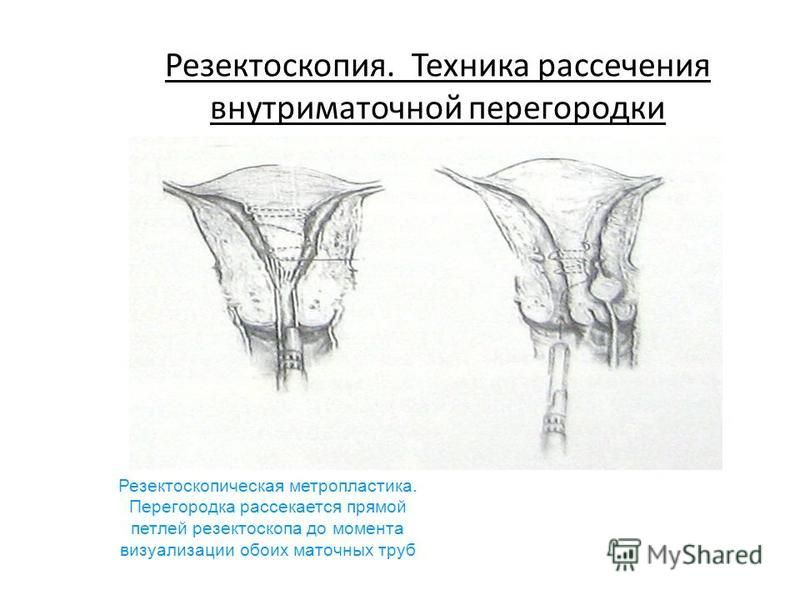 Резектоскопия. Техника рассечения внутриматочной перегородки Резектоскопическая метропластика. Перегородка рассекается прямой петлей резектоскопа до момента визуализации обоих маточных труб