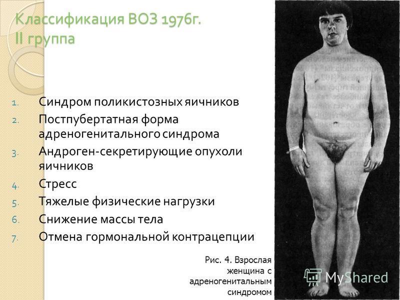 Классификация ВОЗ 1976 г. II группа 1. Синдром поликистозных яичников 2. Постпубертатная форма адреногенитального синдрома 3. Андроген - секретирующие опухоли яичников 4. Стресс 5. Тяжелые физические нагрузки 6. Снижение массы тела 7. Отмена гормонал