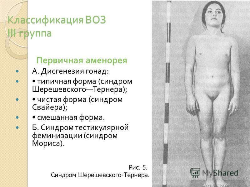 Классификация ВОЗ III группа Первичная аменорея А. Дисгенезия гонад : типичная форма ( синдром Шерешевского Тернера ); чистая форма ( синдром Свайера ); смешанная форма. Б. Синдром тестикулярной феминизации ( синдром Мориса ). Рис. 5. Синдром Шерешев