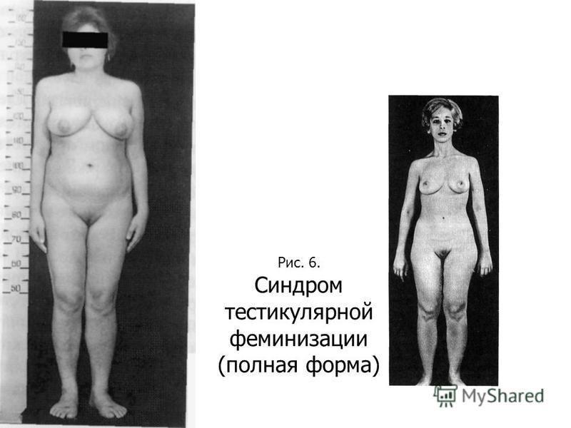 Рис. 6. Синдром тестикулярной феминизации (полная форма)