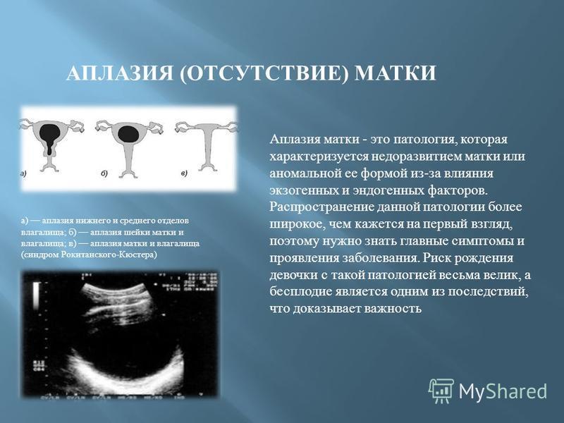 АПЛАЗИЯ ( ОТСУТСТВИЕ ) МАТКИ а ) аплазия нижнего и среднего отделов влагалища ; б ) аплазия шейки матки и влагалища ; в ) аплазия матки и влагалища ( синдром Рокитанского - Кюстера ) Аплазия матки - это патология, которая характеризуется недоразвитие