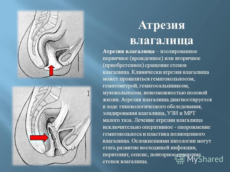 Атрезия влагалища Атрезия влагалища – изолированное первичное ( врожденное ) или вторичное ( приобретенное ) сращение стенок влагалища. Клинически атрезия влагалища может проявляться гематокольпосом, гематометрой, гематосальпинксом, мукокольпосом, не