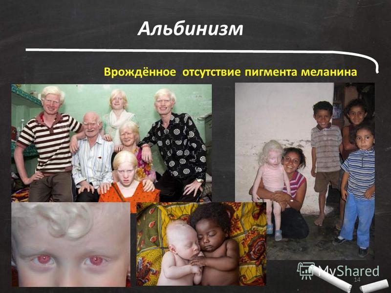14 Альбинизм Врождённое отсутствие пигмента меланина