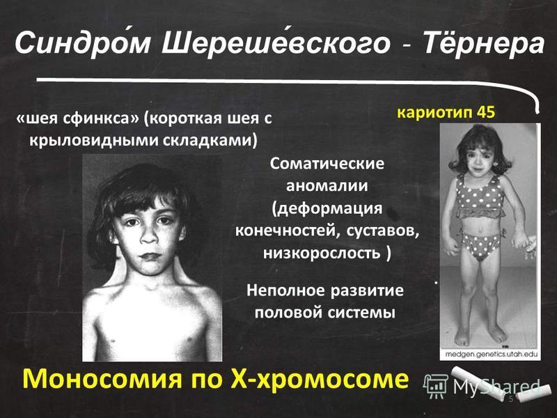 5. Синдро́м Шереше́всякого - Тёрнера Моносомия по X-хромосоме «шея сфинкса» (короткая шея с крыловидными складками) кариотип 45 Соматические аномалии (деформация конечностей, суставов, низкорослость ) Неполное развитие половой системы