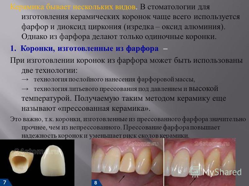 Керамика бывает нескольких видов. В стоматологии для изготовления керамических коронок чаще всего используется фарфор и диоксид циркония ( изредка – оксид алюминия ). Однако из фарфора делают только одиночные коронки. 1. Коронки, изготовленные из фар