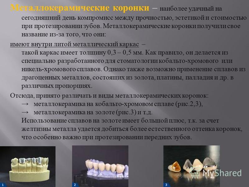 Металлокерамические коронки – наиболее удачный на сегодняшний день компромисс между прочностью, эстетикой и стоимостью при протезировании зубов. Металлокерамические коронки получили свое название из - за того, что они : имеют внутри литой металлическ