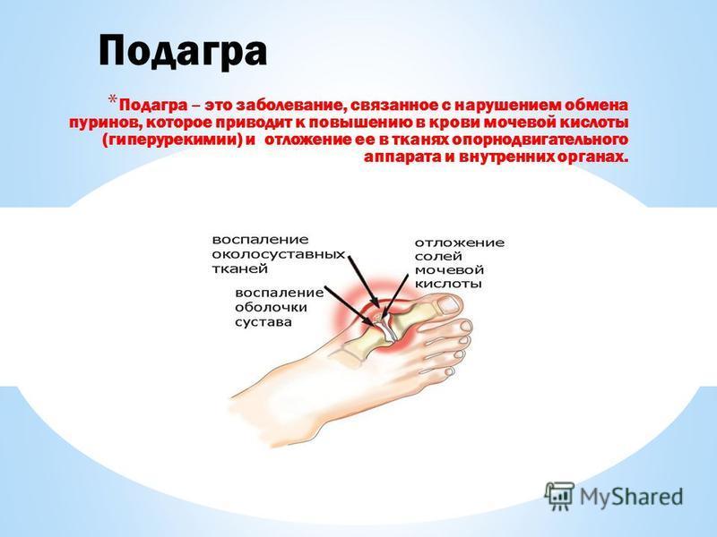 * Подагра – это заболевание, связанное с нарушением обмена пуринов, которое приводит к повышению в крови мочевой кислоты (гиперурикемии) и отложение ее в тканях опорно двигательного аппарата и внутренних органах. Подагра