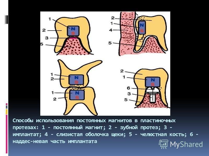Способы использования постоянных магнитов в пластиночных протезах: 1 - постоянный магнит; 2 - зубной протез; 3 - имплантат; 4 - слизистая оболочка щеки; 5 - челюстная кость; 6 - над десневая часть имплантата