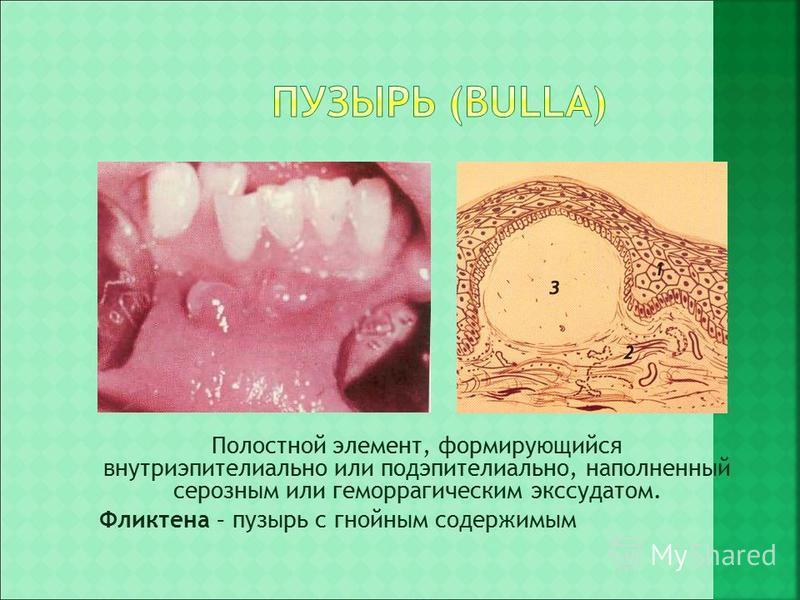 Полостной элемент, формирующийся внутриэпителиальной или подэпителиальной, наполненный серозным или геморрагическим экссудатом. Фликтена – пузырь с гнойным содержимым