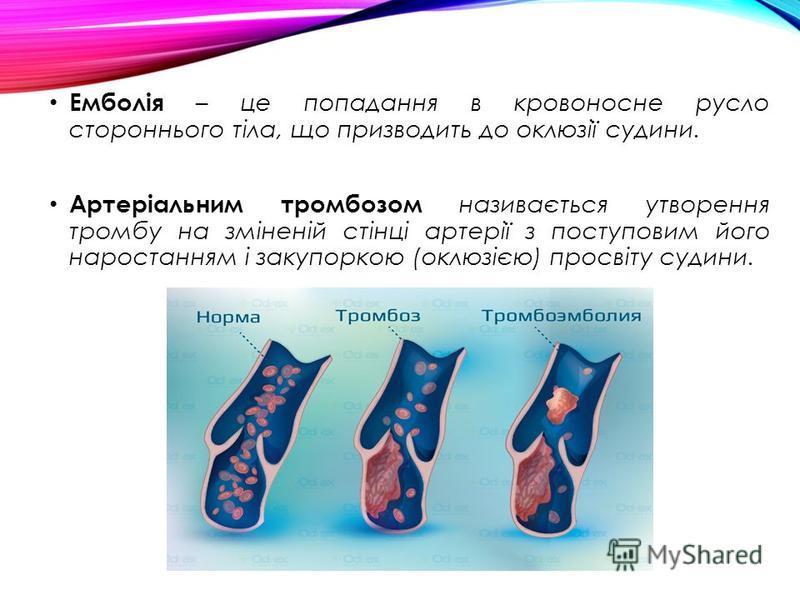 Емболія – це попадання в кровоносне русло стороннього тіла, що призводить до оклюзії судини. Артеріальним тромбозом називається утворення тромбу на зміненій стінці артерії з поступовим його наростанням і закупоркою (оклюзією) просвіту судини.