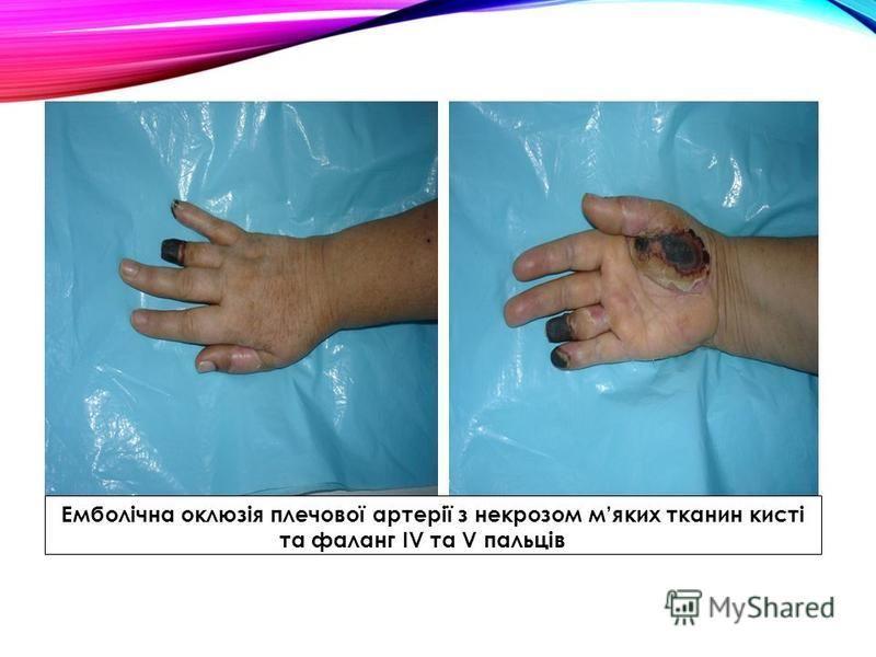 Емболічна оклюзія плечової артерії з некрозом мяких тканин кисті та фаланг ІV та V пальців