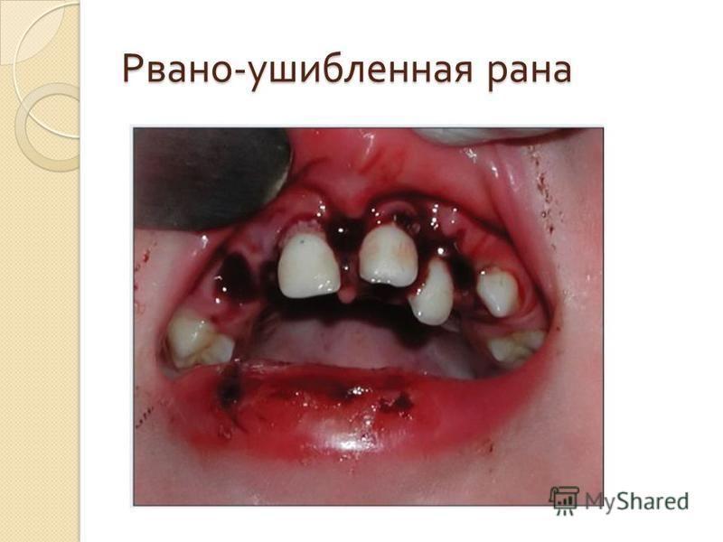 Рвано - ушибленная рана