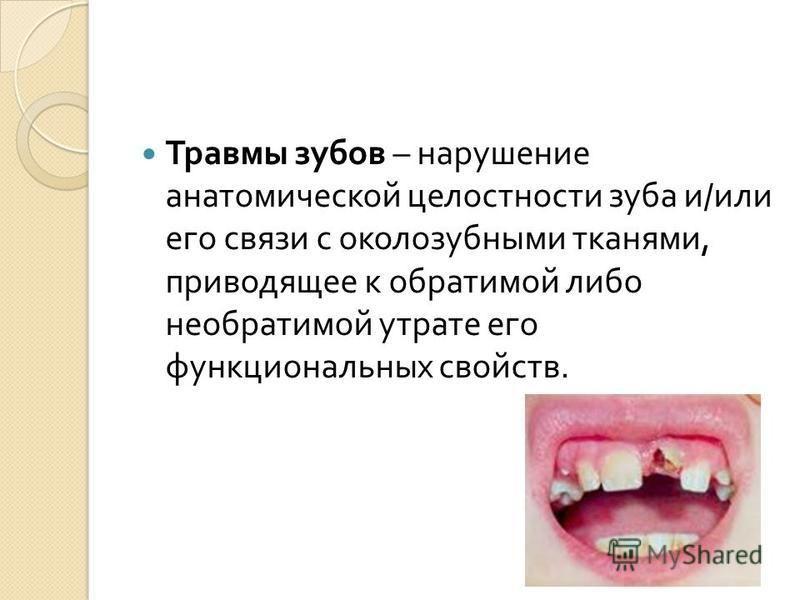 Травмы зубов – нарушение анатомической целостности зуба и / или его связи с околозубными тканями, приводящее к обратимой либо необратимой утрате его функциональных свойств.