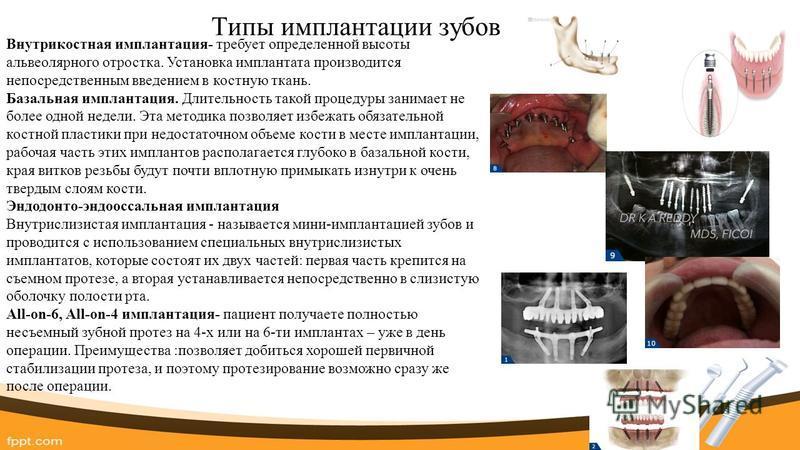 Типы имплантации зубов Внутрикостная имплантация- требует определенной высоты альвеолярного отростка. Установка имплантата производится непосредственным введением в костную ткань. Базальная имплантация. Длительность такой процедуры занимает не более
