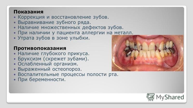 Показания Коррекция и восстановление зубов. Выравнивание зубного ряда. Наличие множественных дефектов зубов. При наличии у пациента аллергии на металл. Утрата зубов в зоне улыбки. Противопоказания Наличие глубокого прикуса. Бруксизм (скрежет зубами).