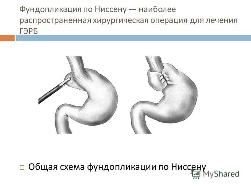 Фундопликация по Ниссену наиболее распространенная хирургическая операция для лечения ГЭРБ Общая схема фундоаппликации по Ниссену