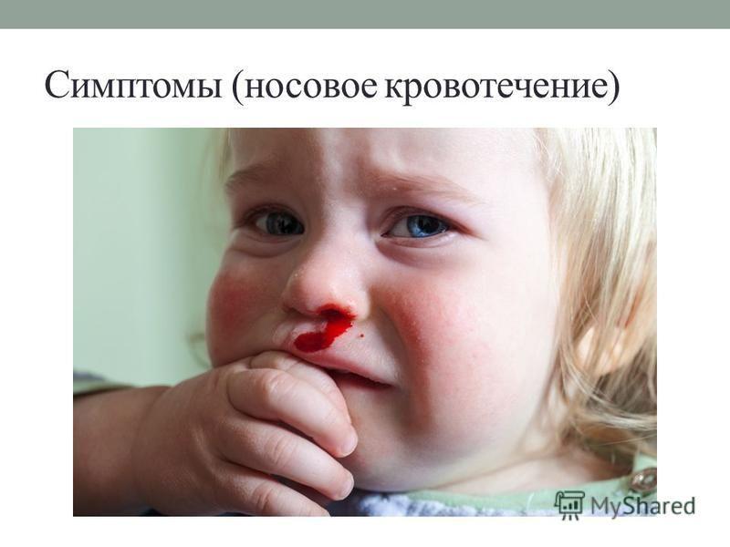 Симптомы (носовое кровотечение)