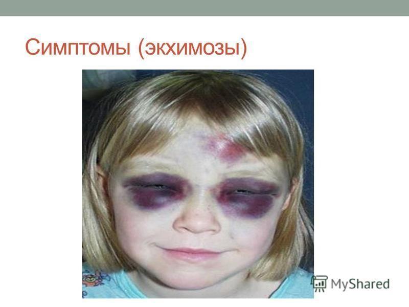 Симптомы (экхимозы)