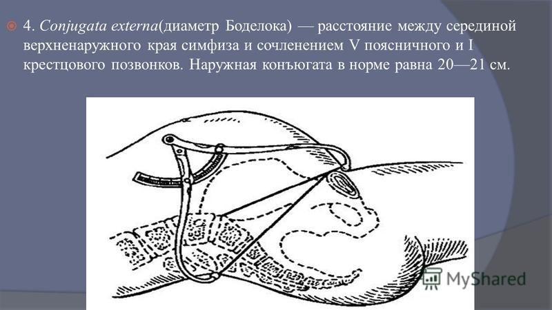 4. Conjugata externa(диаметр Боделока) расстояние между серединой верхние наружного края симфиза и сочленением V поясничного и I крестцового позвонков. Наружная конъюгата в норме равна 2021 см.