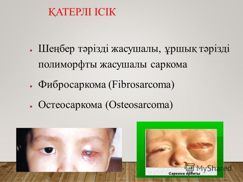 ҚАТЕРЛІ ІСІК Шеңбер тәрізді жасушалы, ұршық тәрізді полиморфты жасушалы саркома Фибросаркома (Fibrosarcoma) Остеосаркома (Osteosarcoma)