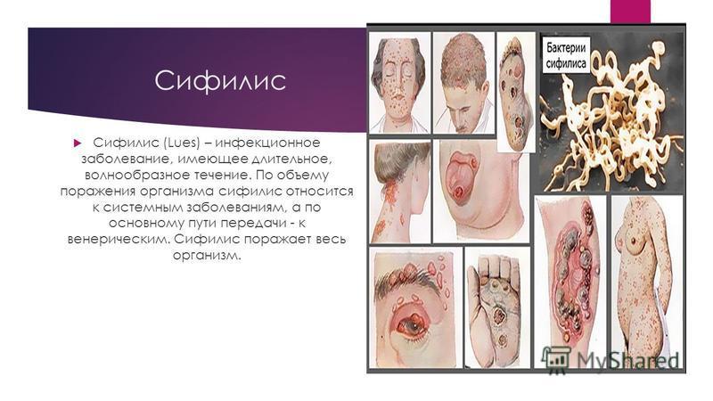 Сифилис Сифилис (Lues) – инфекционное заболевание, имеющее длительное, волнообразное течение. По объему поражения организма сифилис относится к системным заболеваниям, а по основному пути передачи - к венерическим. Сифилис поражает весь организм.