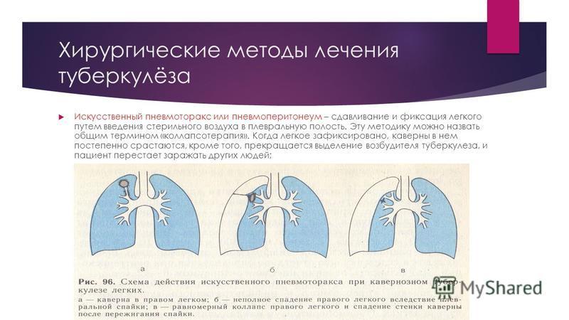 Хирургические методы лечения туберкулёза Искусственный пневмоторакс или пневмоперитонеум – сдавливание и фиксация легкого путем введения стерильного воздуха в плевральную полость. Эту методику можно назвать общим термином «коллапсотерапия». Когда лег