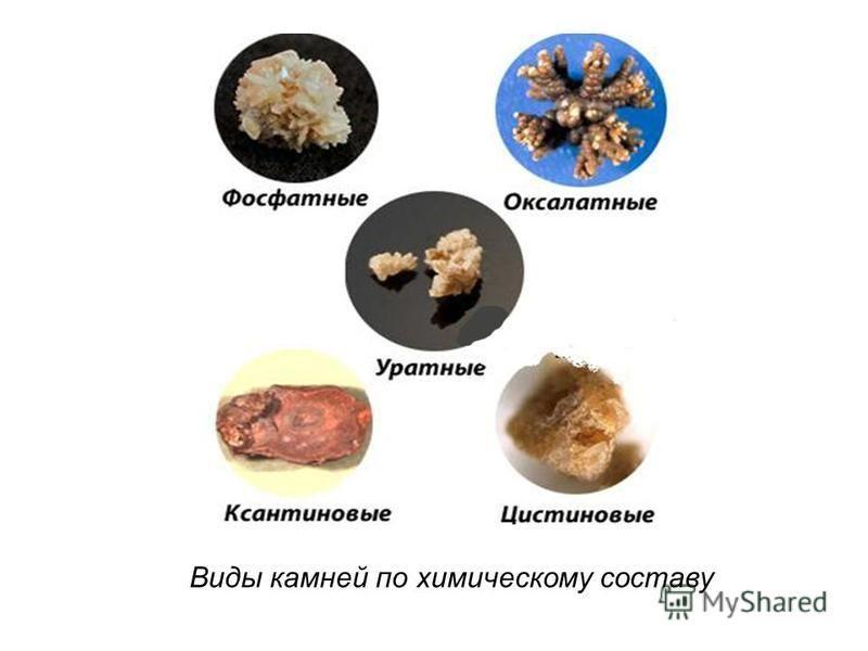 Виды камней по химическому составу