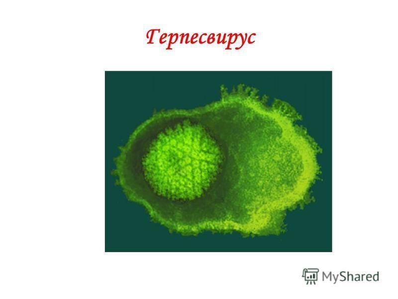 Герпесвирус
