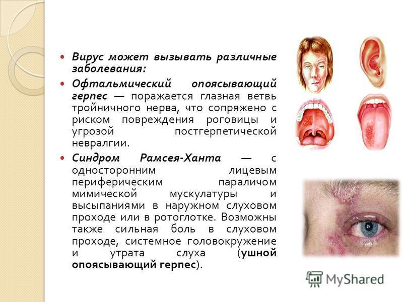 Вирус может вызывать различные заболевания : Офтальмический опоясывающий герпес поражается глазная ветвь тройничного нерва, что сопряжено с риском повреждения роговицы и угрозой постгерпетической невралгии. Синдром Рамсея - Ханта с односторонним лице