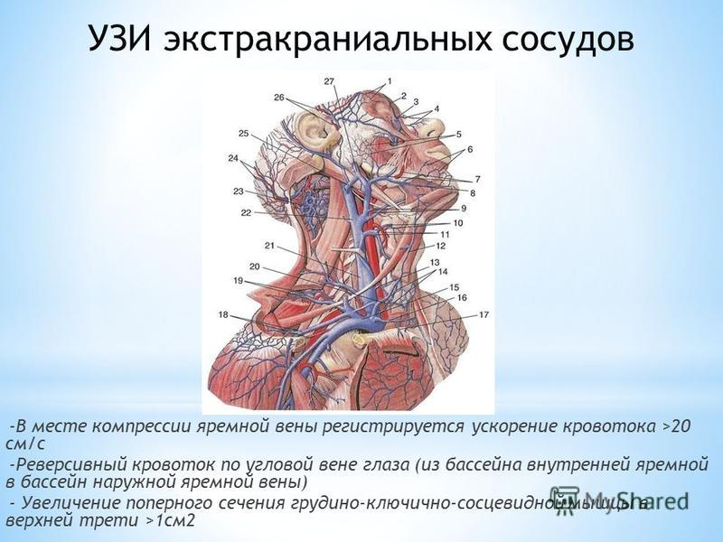 -В месте компрессии яремной вены регистрируется ускорение кровотока >20 см/с -Реверсивный кровоток по угловой вене глаза (из бассейна внутренней яремной в бассейн наружной яремной вены) - Увеличение поперечного сечения грудино-ключично-сосцевидной мы