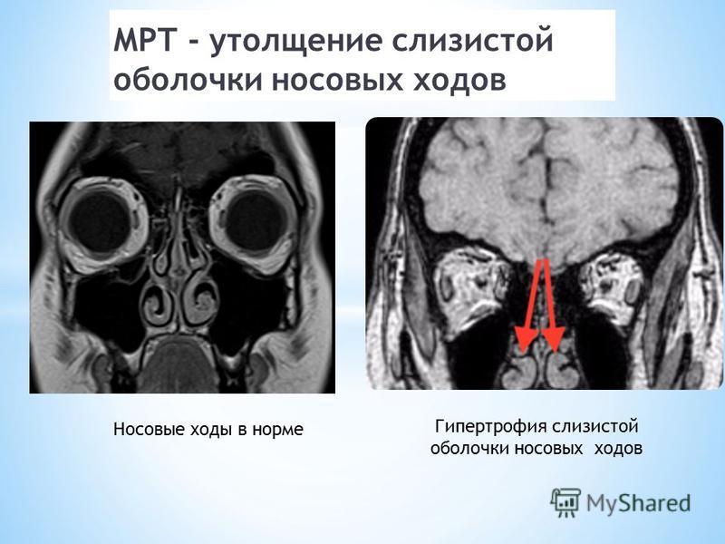 МРТ - утолщение слизистой оболочки носовых ходов Гипертрофия слизистой оболочки носовых ходов Носовые ходы в норме