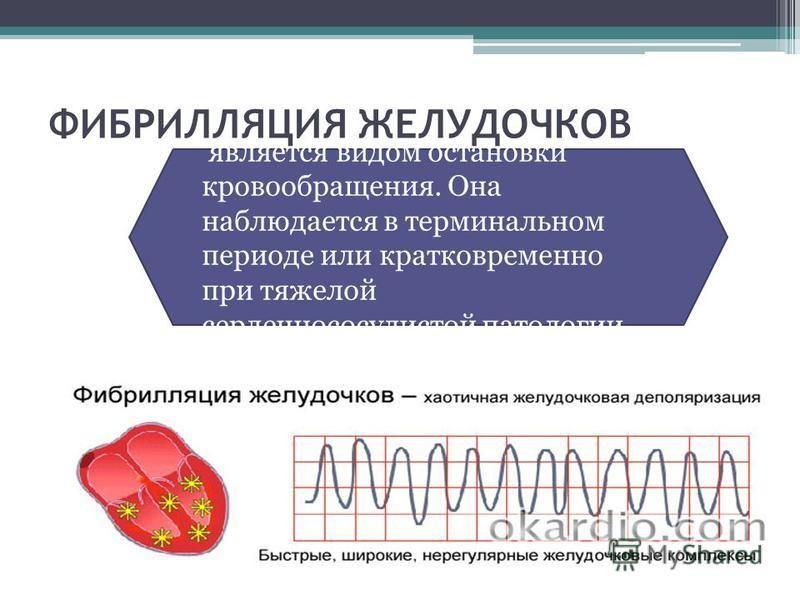 ФИБРИЛЛЯЦИЯ ЖЕЛУДОЧКОВ является видом остановки кровообращения. Она наблюдается в терминальном периоде или кратковременно при тяжелой сердечно сосудистой патологии.