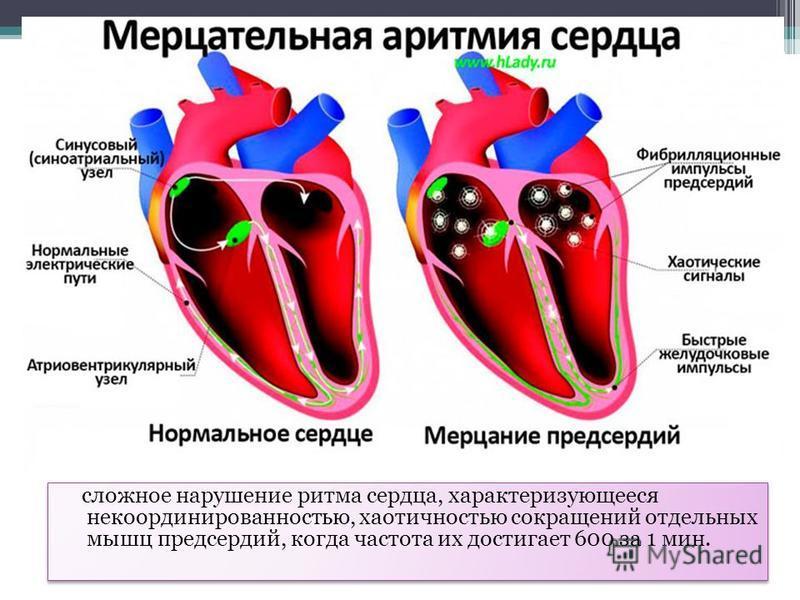 МЕРЦАТЕЛЬНАЯ АРИТМИЯ сложное нарушение ритма сердца, характеризующееся некоординированностью, хаотичностью сокращений отдельных мышц предсердий, когда частота их достигает 600 за 1 мин.